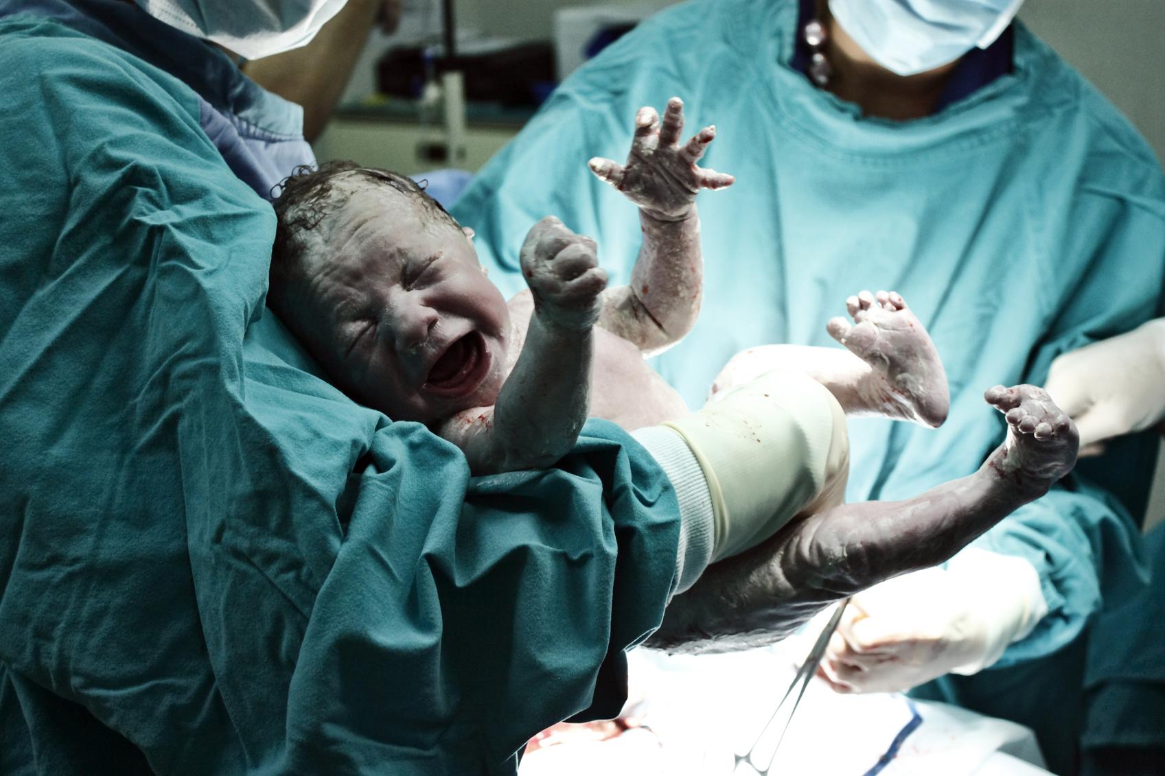 Preterm labour-pregnancy