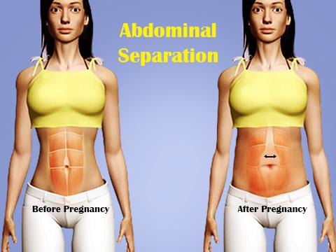 abdominal-separation